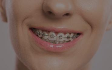 Guida agli apparecchi ortodontici