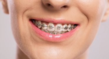 unintroduzione-agli-apparecchi-ortodontici