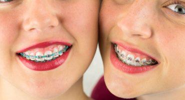 unintroduzione-alla-terapia-ortodontica-per-tutta-la-famiglia