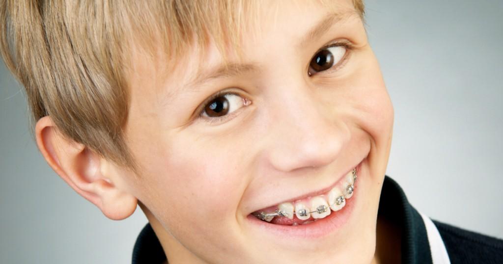 tre-cose-che-dovresti-sapere-sulla-prevenzione-e-la-cura-ortodontica