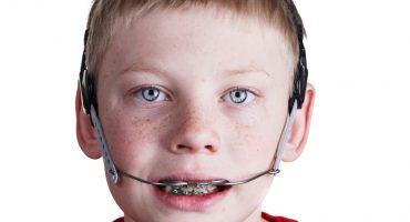 la-trazione-extra-orale-una-soluzione-semplice-per-i-denti-sporgenti