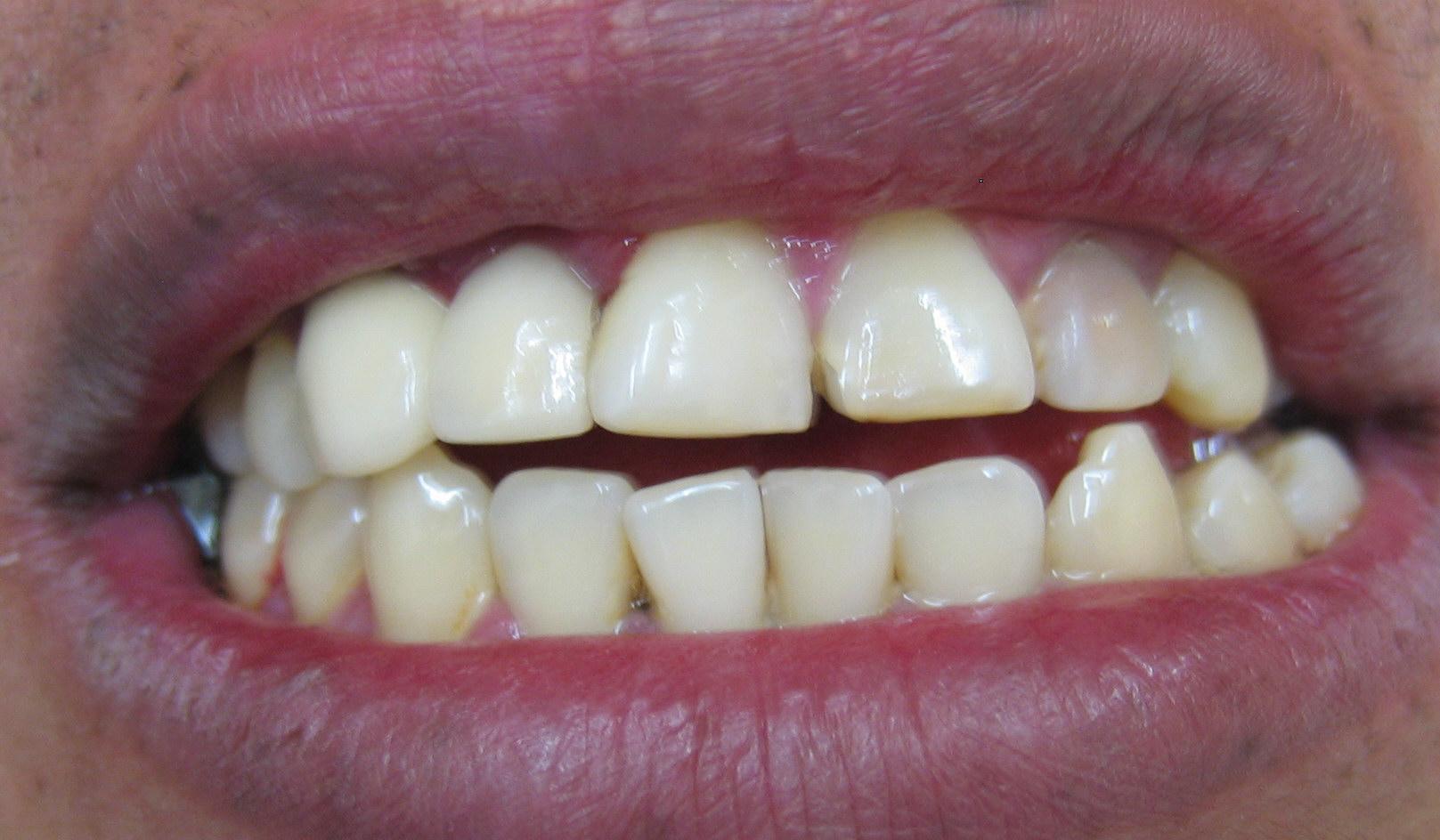 cura-delle-malocclusioni-ortodonzia-e-chirurgia-maxillo-facciale