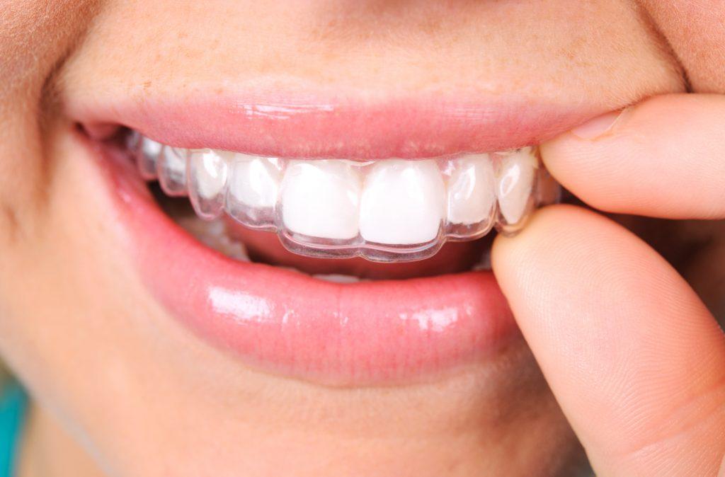 https://www.sorridibene.it/wp-content/uploads/2018/10/allineatore-dentale-1024x674.jpg