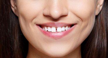 fluoro-fondamentale-elemento-da-assicurare-sempre-ai-nostri-denti