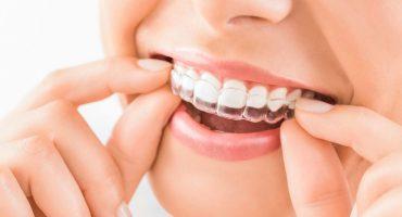 ortodonzia-invisibile-cose-e-a-chi-si-rivolge